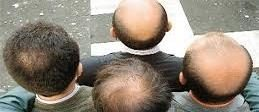 Cure for baldness? Hair-follicle-generating stem cells bring hope